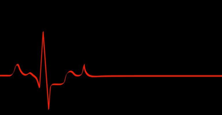 Heart Rhythm On Black